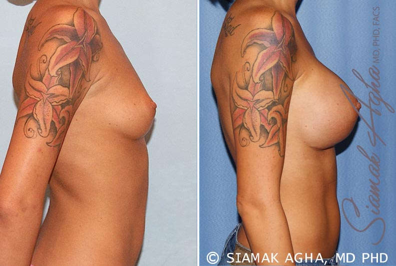 Orange County Newport Beach breast augmentation 33 Right View