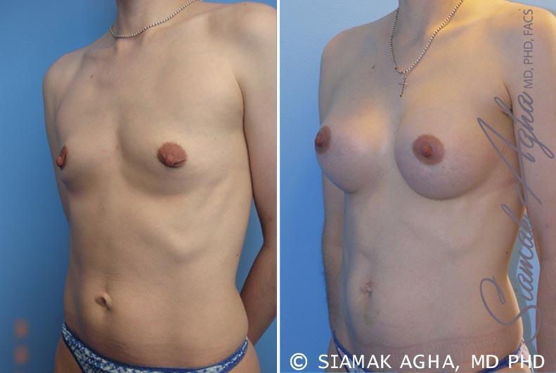 Orange County Newport Beach breast augmentation 34 Front Left View