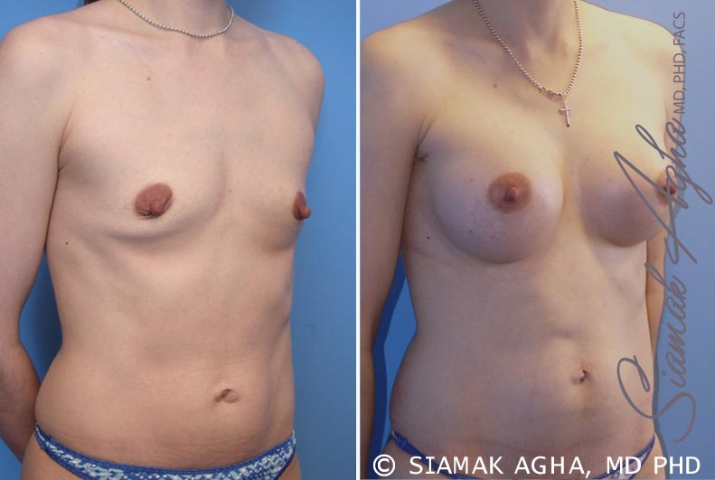 Orange County Newport Beach breast augmentation 34 Front Right View