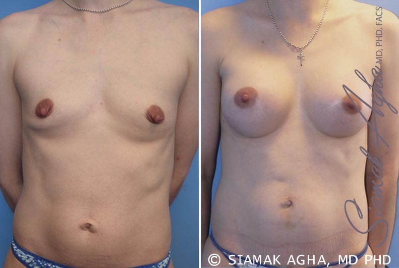 Orange County Newport Beach Breast Augmentation Patient 34