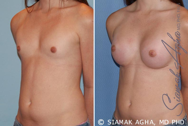 Orange County Newport Beach breast augmentation 35 Front Left View