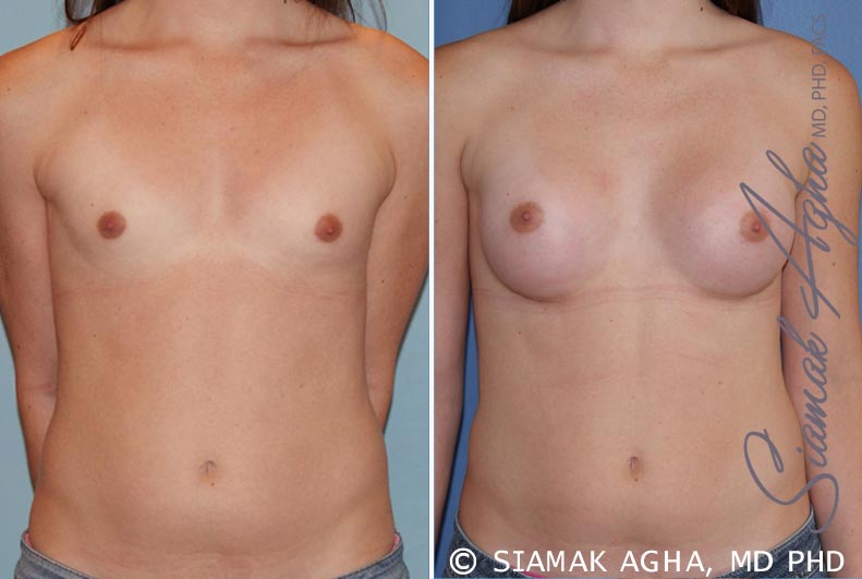 Orange County Newport Beach Breast Augmentation Patient 35