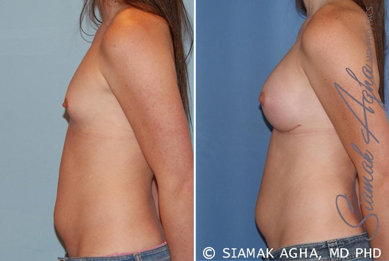 Orange County Newport Beach breast augmentation 35 Left View