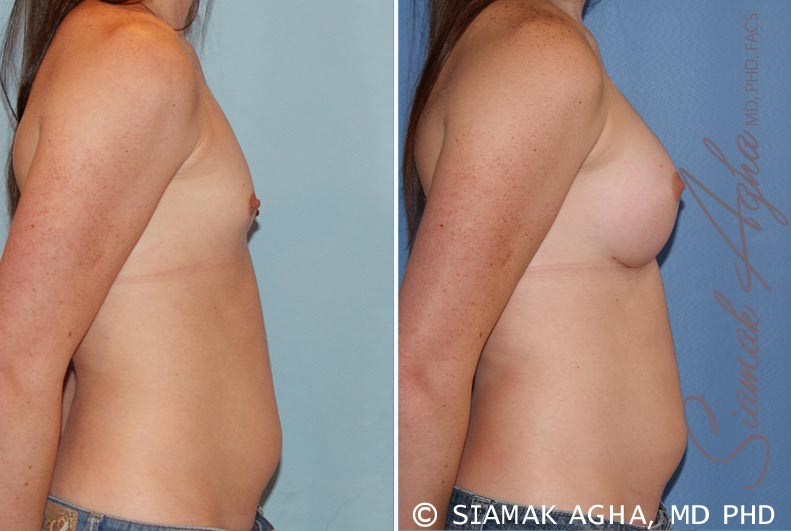 Orange County Newport Beach breast augmentation 35 Right View