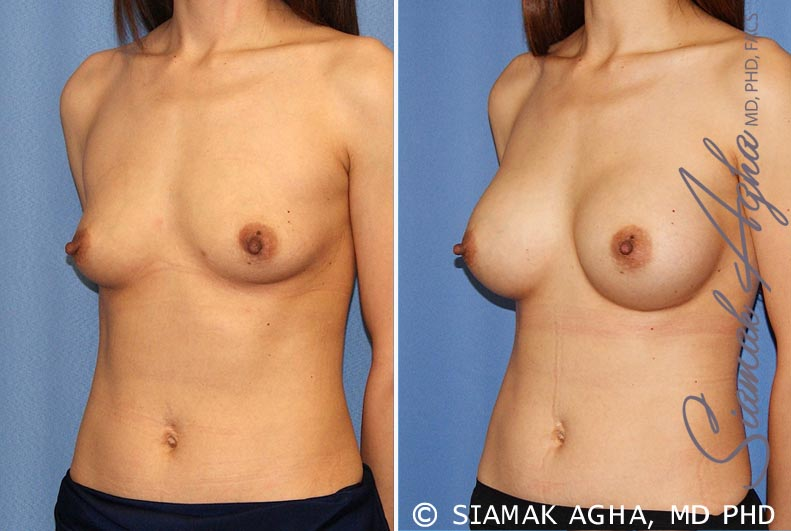 Orange County Newport Beach breast augmentation 36 Front Left View