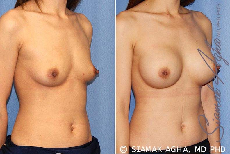 Orange County Newport Beach breast augmentation 36 Front Right View