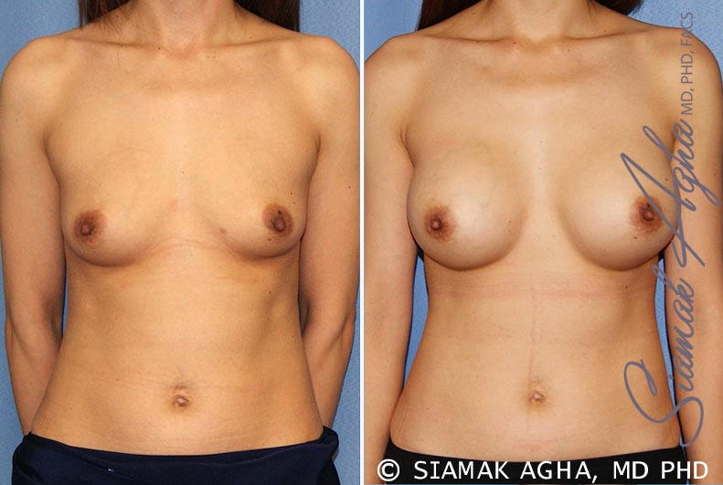 Orange County Newport Beach Breast Augmentation Patient 36