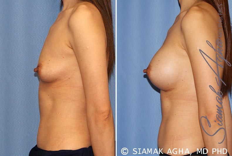 Orange County Newport Beach breast augmentation 36 Left View
