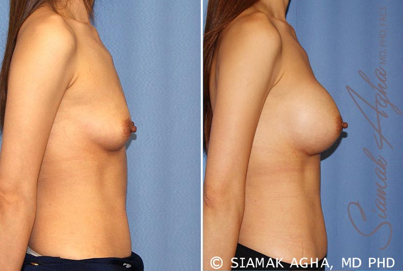 Orange County Newport Beach breast augmentation 36 Right View