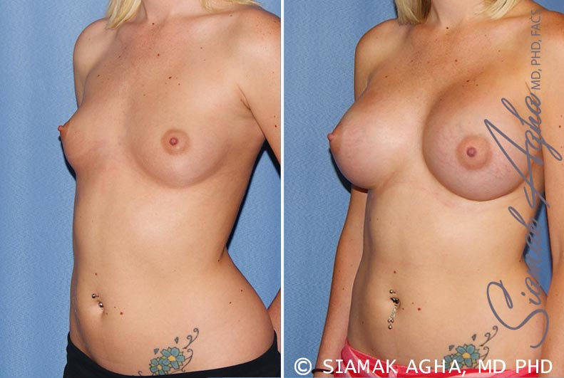 Orange County Newport Beach breast augmentation 37 Front Left View