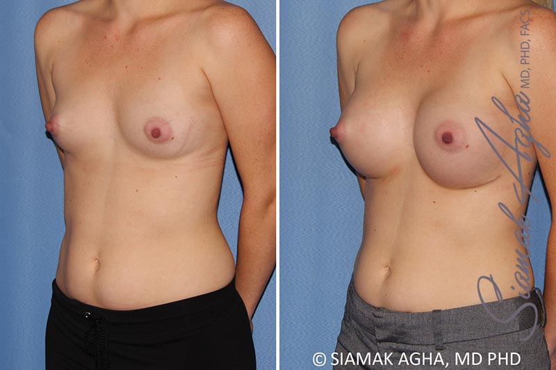 Orange County Newport Beach breast augmentation 38 Front Left View
