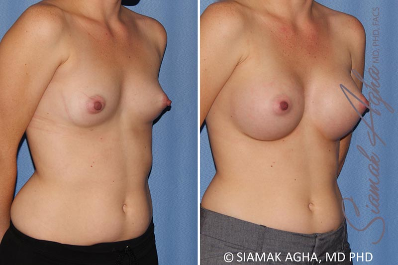 Orange County Newport Beach breast augmentation 38 Front Right View