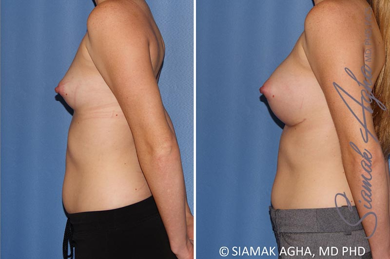 Orange County Newport Beach breast augmentation 38 Left View