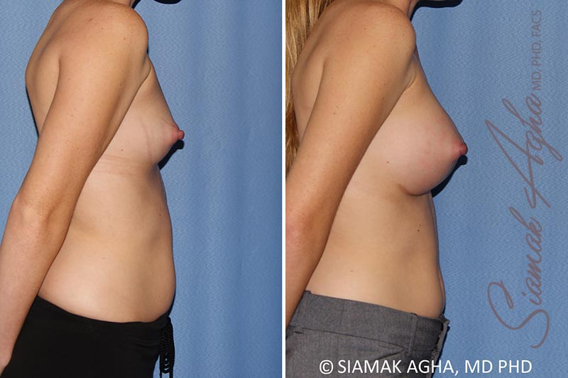 Orange County Newport Beach breast augmentation 38 Right View