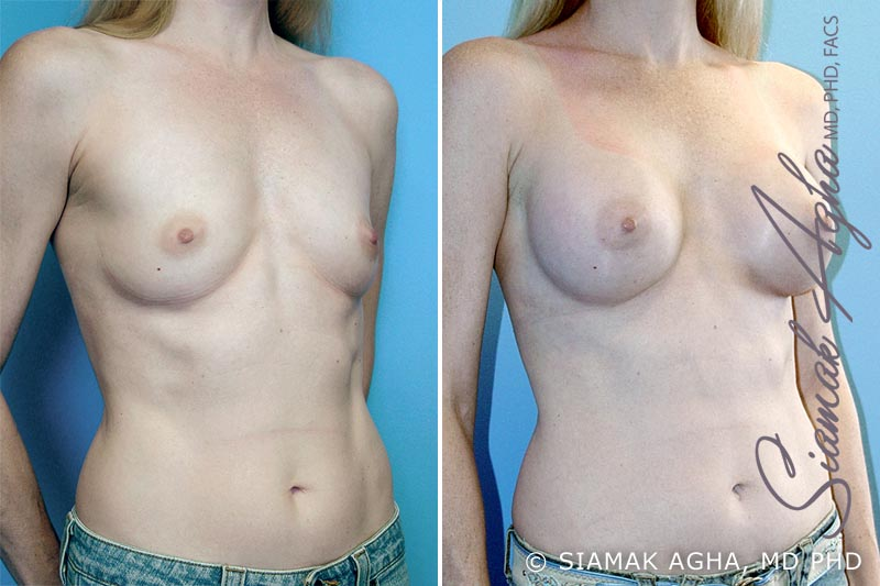 Orange County Newport Beach breast augmentation 4 Front Right View