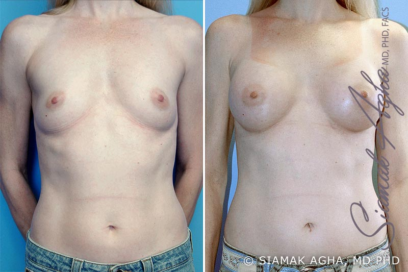 Orange County Newport Beach Breast Augmentation Patient 4