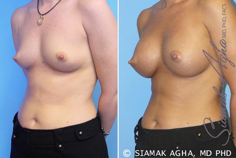 Orange County Newport Beach breast augmentation 5 Front Left View