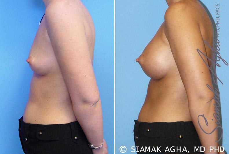 Orange County Newport Beach breast augmentation 5 Left View