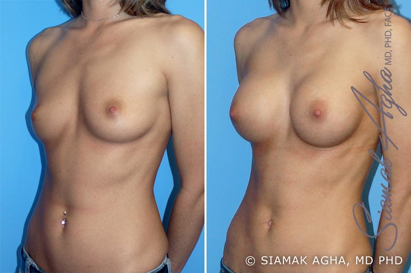 Orange County Newport Beach breast augmentation 6 Front Left View