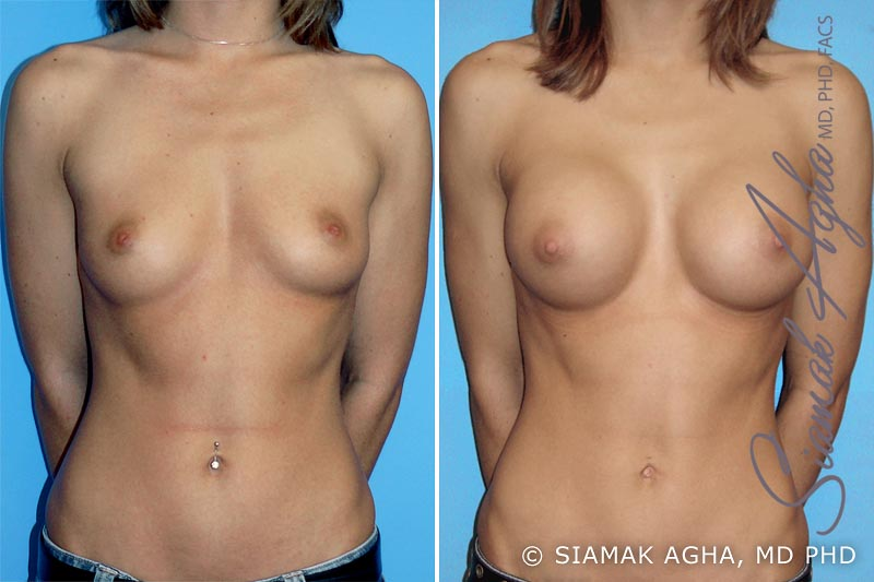 Orange County Newport Beach breast augmentation 6 Front View
