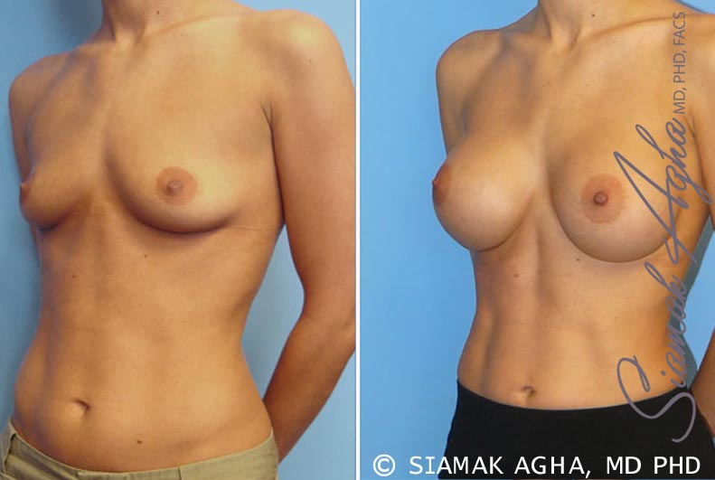 Orange County Newport Beach Breast Augmentation Patient 7