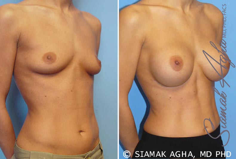 Orange County Newport Beach breast augmentation 7 Front Right View