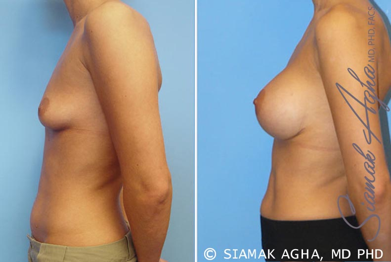 Orange County Newport Beach breast augmentation 7 Left View