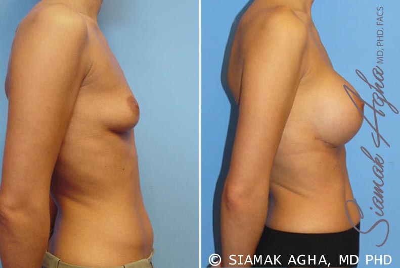 Orange County Newport Beach breast augmentation 7 Right View