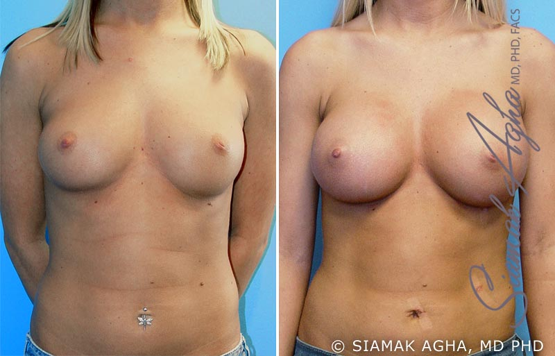 Orange County Newport Beach breast augmentation 8 Front View