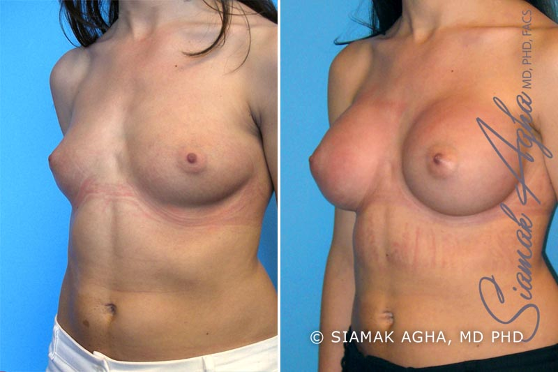 Orange County Newport Beach breast augmentation 9 Front Left View
