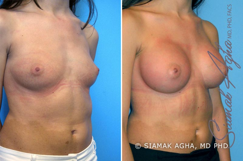 Orange County Newport Beach breast augmentation 9 Front Right View