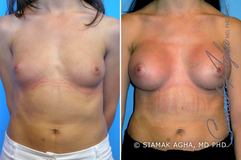 Orange County Newport Beach breast augmentation 9 Front View