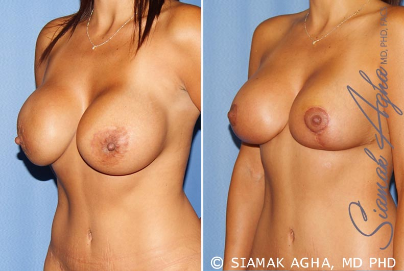 Orange County Newport Beach Breast Augmentation Revision 10 Front Left View