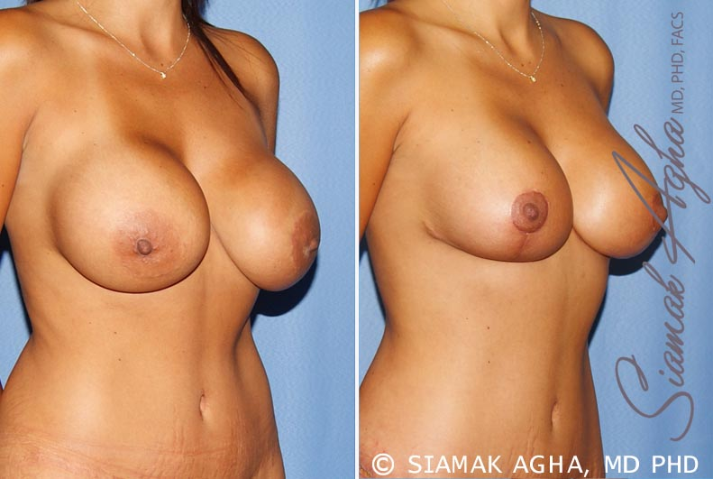 Orange County Newport Beach Breast Augmentation Revision 10 Front Right View