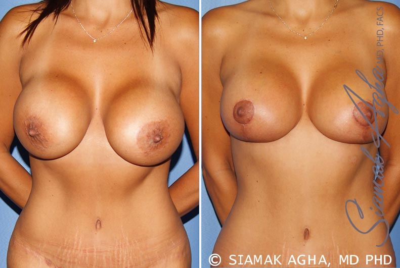 Orange County Newport Beach Breast Augmentation Revision 10 Front View