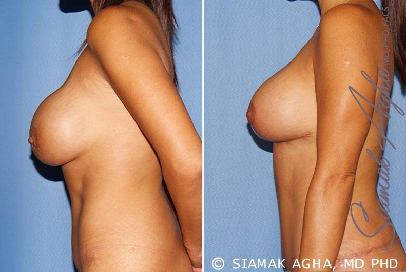 Orange County Newport Beach Breast Augmentation Revision 10 Left View