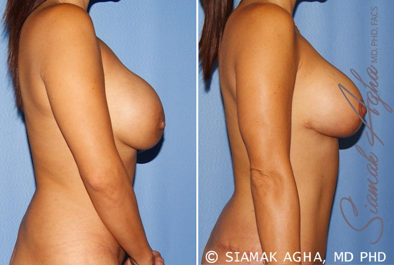 Orange County Newport Beach Breast Augmentation Revision 10 Right View