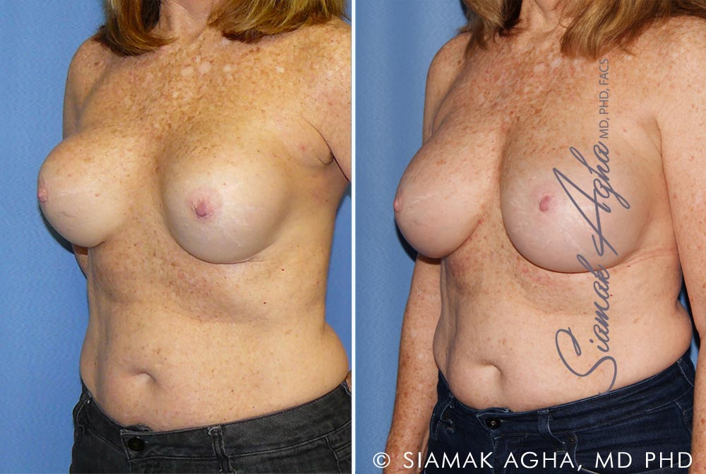 Orange County Newport Beach Breast Augmentation Revision 11 Front Left View