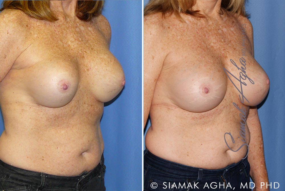 Orange County Newport Beach Breast Augmentation Revision 11 Front Right View