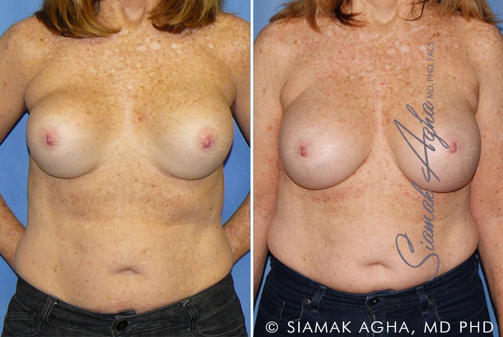 Orange County Newport Beach Breast Augmentation Revision Patient 11