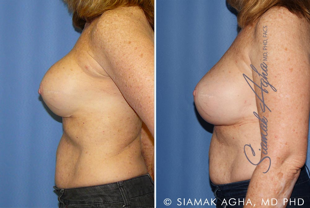 Orange County Newport Beach Breast Augmentation Revision 11 Left View