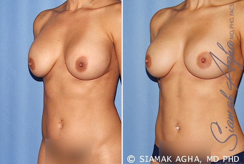 Orange County Newport Beach Breast Augmentation Revision 12 Front Left View