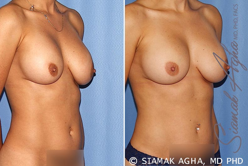 Orange County Newport Beach Breast Augmentation Revision 12 Front Right View