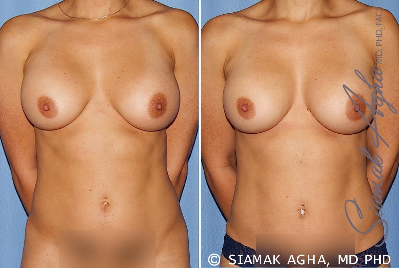 Orange County Newport Beach Breast Augmentation Revision 12 Front View
