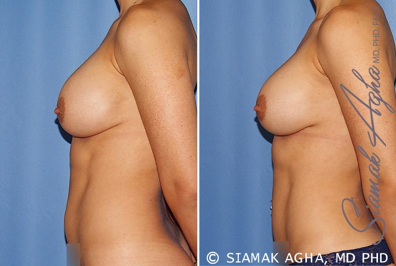 Orange County Newport Beach Breast Augmentation Revision 12 Left View