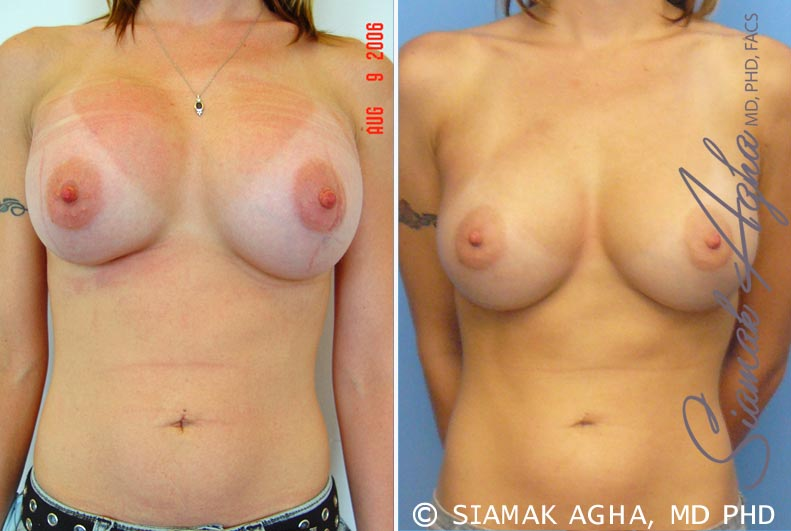 Orange County Newport Beach Breast Augmentation Revision 2 Front View