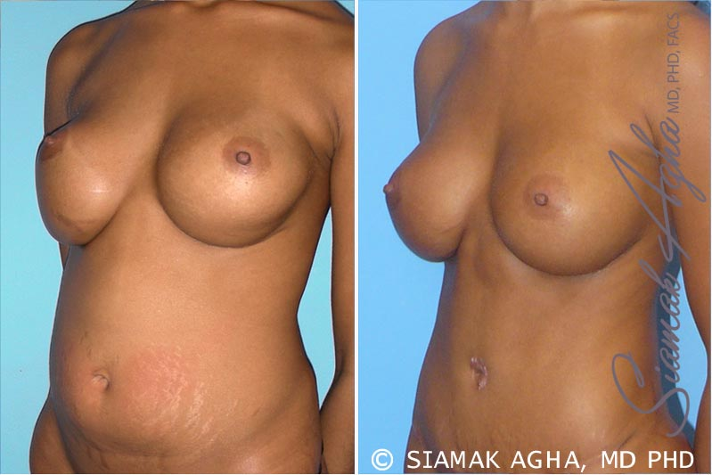 Orange County Newport Beach Breast Augmentation Revision 3 Front Left View