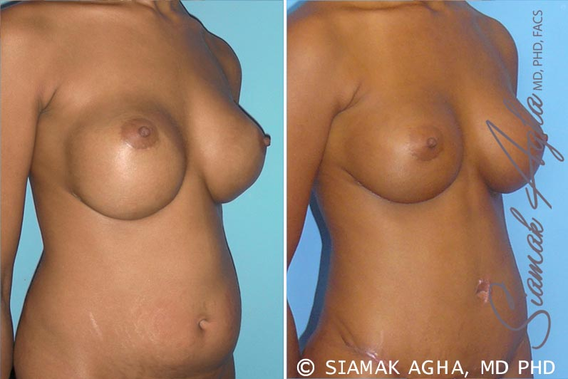 Orange County Newport Beach Breast Augmentation Revision 3 Front Right View