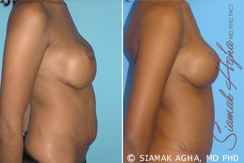 Orange County Newport Beach Breast Augmentation Revision 3 Right View