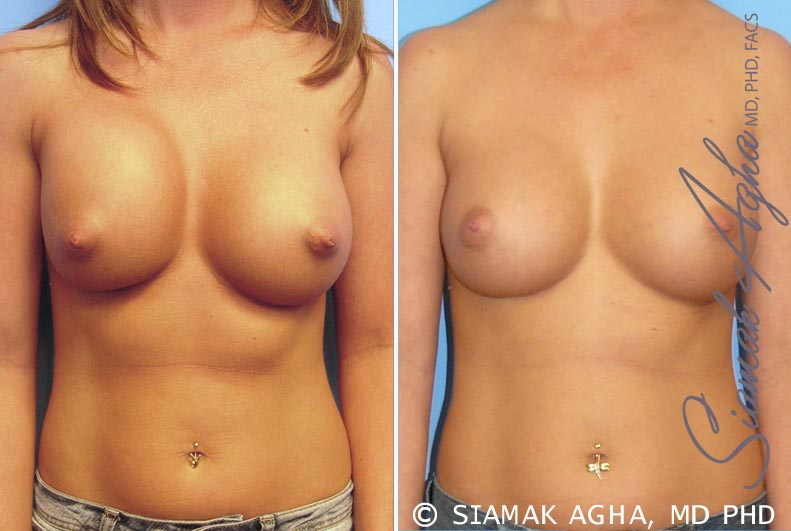 Orange County Newport Beach Breast Augmentation Revision Patient 4